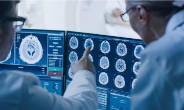 Imagem De Dois Médicos De Costas, Analisando Um Quadro Clínico De Um Paciente, Por Meio De Radiografias Do Cérebro