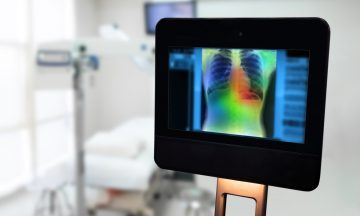 Imagem De Um Ambiente Hospitalar, Ao Fundo Existe Uma Maca Vazia E A Frente Um Tablet Com O Raio-x De Uma Diagnóstico De Câncer De Pulmão